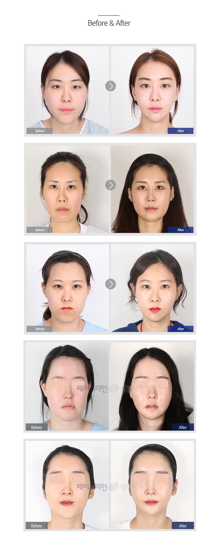 페이스라인 긴얼굴 전후사진